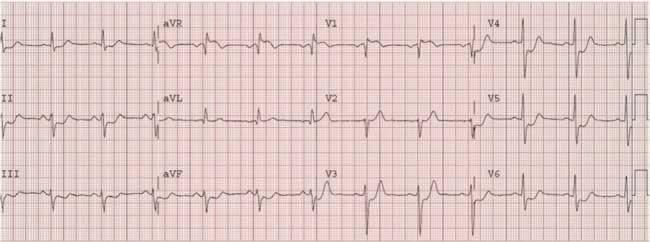 Electrocardiogram image
