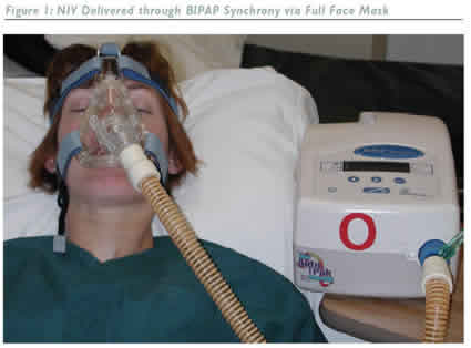NIV Delivered Through BIPAP...